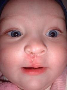 recien nacidos con labio leporino